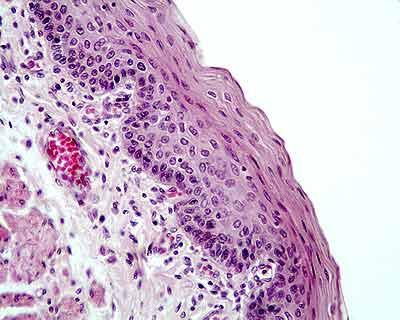 ematossilina di gill